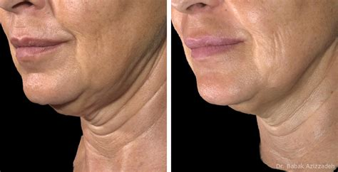 pictures of sagging skin on neck ulthera before and after photo gallery beverly hills kuwait