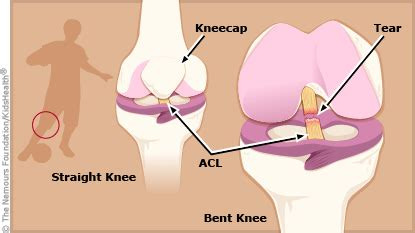 torn acl heal on its own a to z anterior cruciate ligament acl injuries
