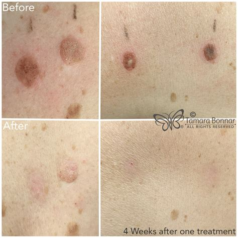 tamara bonnar cryotherapy removal of skin flaws