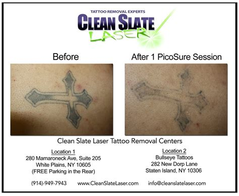 photos for clean slate laser tattoo removal westchester