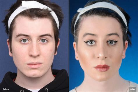 mtf ffs facial feminization surgery before and after facial feminization surgery pictures