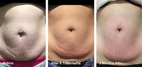 tattoo removal cost australia ultralux v4 ipl machine radio frequency skin tightening