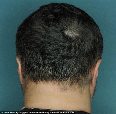 hair at the back of the head thinning 毛生え薬の誕生 たった5ヶ月飲むだけでハゲが治る夢の新薬が登場 奥様情報ちゃんねる