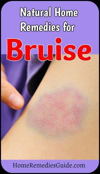 best 25 bruise remedies ideas on healing