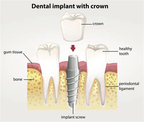 comfort dental implants comfort dental implants 28 images comfort dental