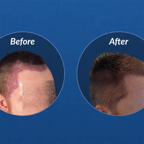 hair transplant timeline photos fue hair transplant timeline hasson wong