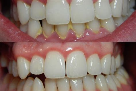 how to clean tartar s teeth here s how to brush your teeth properly to make sure they re really clean wales