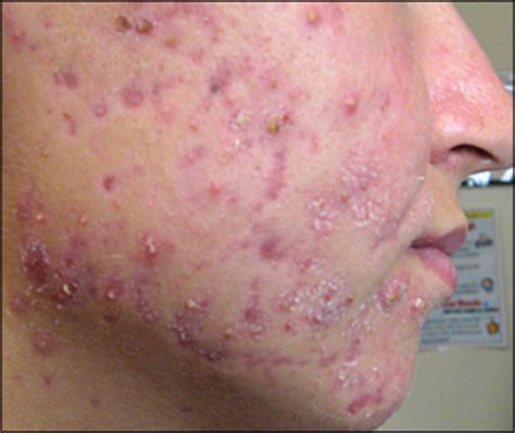 Cystic Pimple Diagram Types Of diagnosis and treatment of acne american family physician