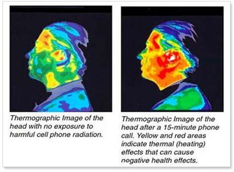 calore in testa nuove allergie arriva quella a tv e cellulari o in