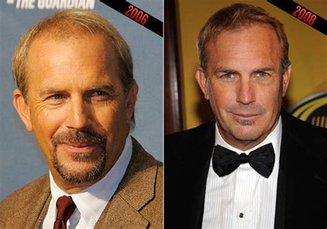 akshay kumar hair replacements is kevin costner considering another hair transplant