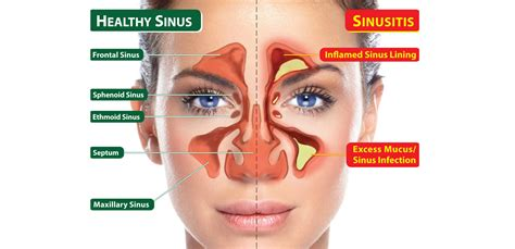 Sinus Cure sinus infection picture pictures photos