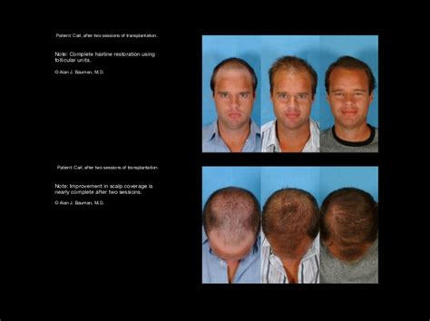 dr bauman offers no linear scar hair transplants with hair transplant results including male female eyelash
