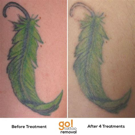 tattoo removal completely gone after 4 laser removal treatments the majority of
