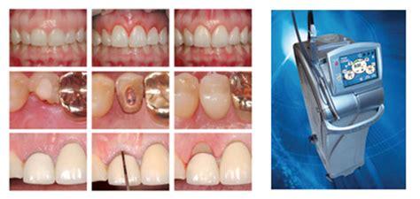 diode laser endodontics sri ragavendra care laser center md turbo waterlase laser thanjavur tamilnadu
