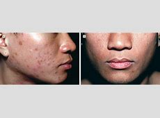 Topical Tacrolimus for Effective Treatment of Eosinophilic ... Hiv Patient Face