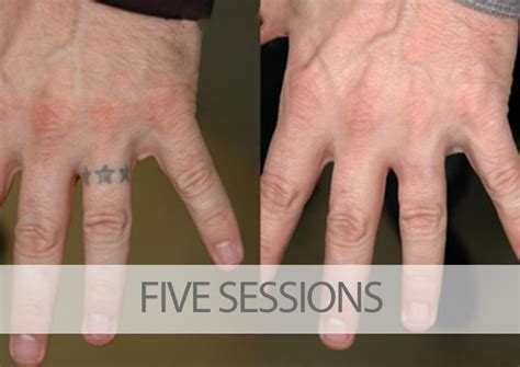 hand tattoo removal before and after before and after laser tattoo removal results eraditatt