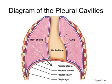 cavity diagram broken rib diagram broken collarbone diagram elsavadorla
