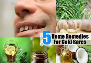 home remedies for a cold sore 5 cold sores home remedies treatments and cure