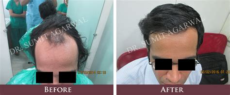 is hair transplant safe top 7 myths about hair transplant in india