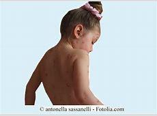 Exanthem bei Kindern, Ausschlag, Ekzem, Scharlach, Kind ... Kawasaki Syndrom