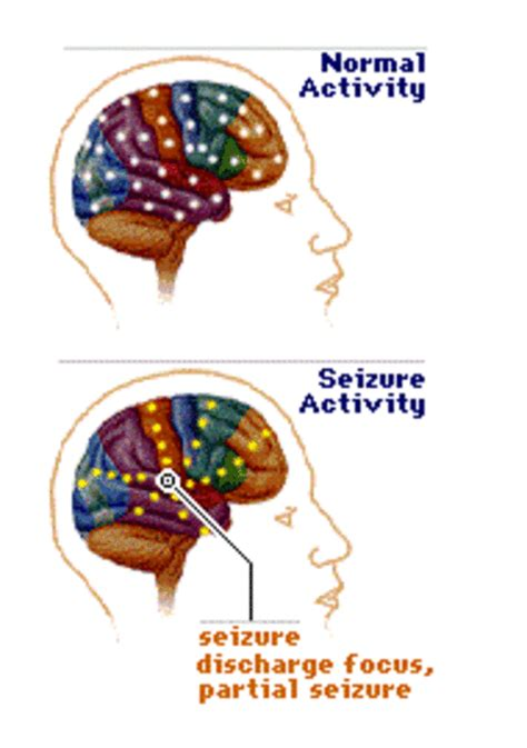 what causes seizures birth injury lawyers faq neonatal seizures