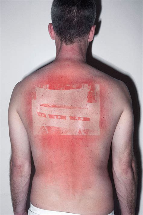 these horrible sunburns document history in an unusual way