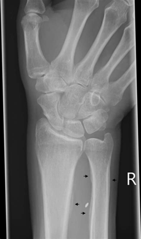 Hypertrophic osteoarthropathy in a patient with known lung