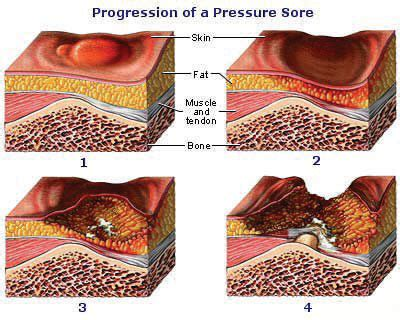 how do you get bed sores skin breakdown pressure ulcer prevention with sci rrtc