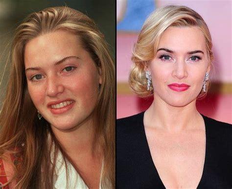 375 best images about celebrity plastic surgery on pinterest celebrity kate winslet before after celebrity plastic