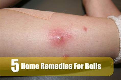 Home Remedies For Boils On by 69 Best Images About Boils Relief On Medicine