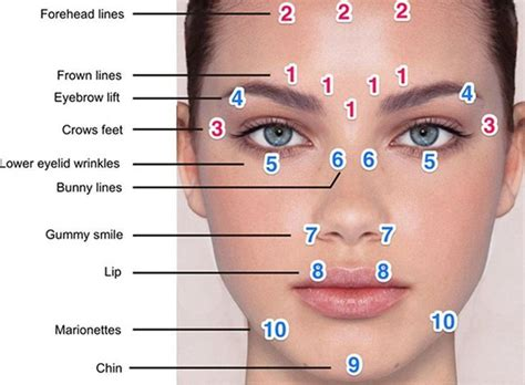 Botox Detox And Recovery Guide by Image Result For Botox Injection Diagram
