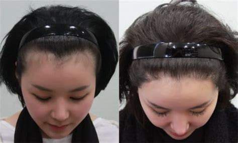 new hair growth at forehead hairline difficult to style bangs fue follicular unit extraction smp scalp micro