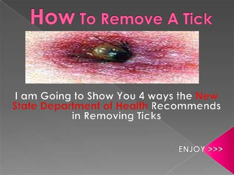 how to remove a tick from a how to remove a tick fast
