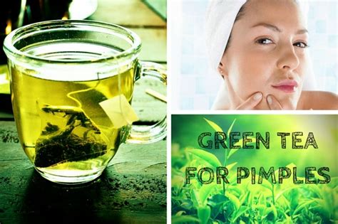 Acne Malam Acne Green Tea how to treat acne quickly with green tea