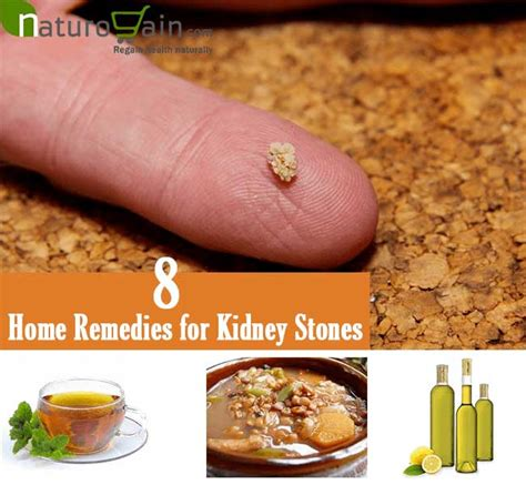 8 best home remedies for kidney stones to improve kidney