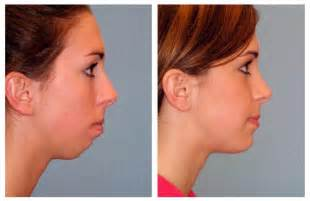 Augmentation by Plastic Surgery Before And After Chin Augmentation Before