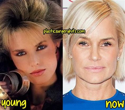 yolanda foster plastic surgery yolanda foster plastic surgery fact or rumor