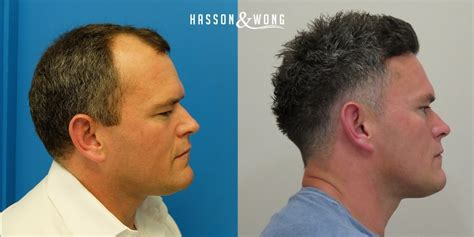 hair transplant before and after hair transplant photo results hasson wong