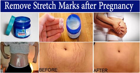 Health Tips Stretch Marks And Pregnancy by Easy Way To Remove Stretch Marks Using Vicks Vaporub