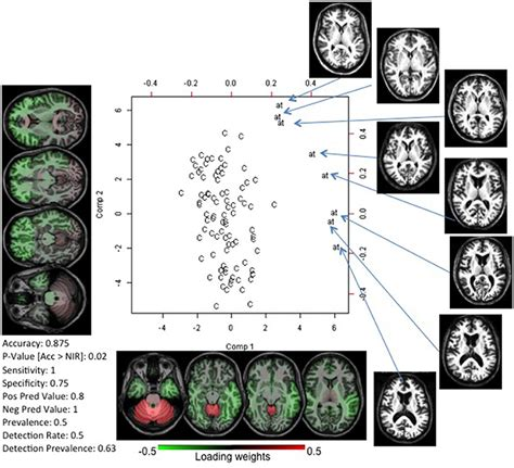 pattern recognition neuroscience frontiers brain mri pattern recognition translated to