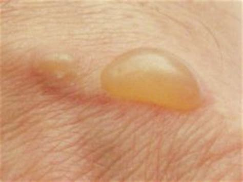 vaginal blisters women health info blog