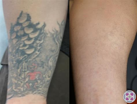 tattoo removal after laser removal how a is removed