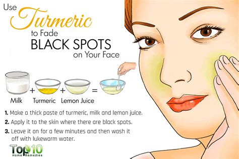 home remedies for black spots on your saloni health