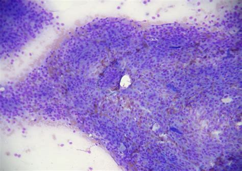 adenocarcinoma in dogs sac adenocarcinoma