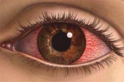 eye sensitivity to light eye watering sensitivity to light decoratingspecial com