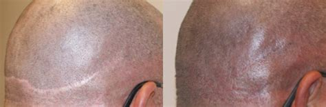 products to hid transplsnt scare micropigmentation cosmetic pigment to hide baldness