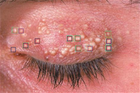 powered by mybb infections in the back pics for gt dermatology skin conditions