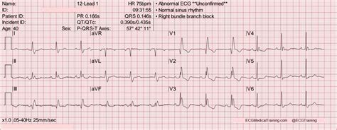 rsr pattern ecg meaning bifascicular blocks what you need to know ecg medical