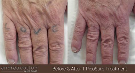 tattoo removal orange county the 532nm picosure 174 laser system has arrived for the