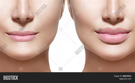 Augmentation Fill by Fillers In Before And After Decorativestyle Org